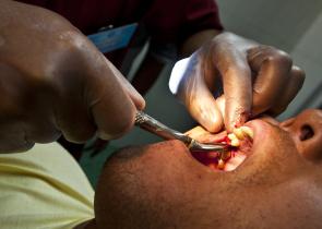 Vytržený zub - jak hojit ránu
