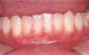 Parodontální chobot