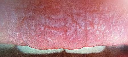 Suché lůžko povytržení zubu