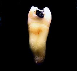 Bolest a poruchy žvýkacího kloubu
