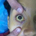 Žluté skvrny v obličeji