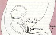 Ztráta erekce po operaci prostaty