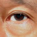 Vaky a kruhy pod očima