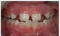 Eroze a restaurování zubní skloviny