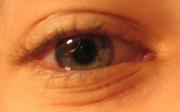 Jak správně zvládnout astigmatismus