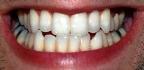 Skřípání zubů