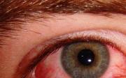 Červené oči nebo pupínky kolem očí