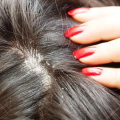 Kvasinky ve vlasech