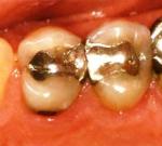 Zubní plomba