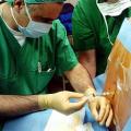 Anestezie a narkóza