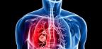 Rakovina plic