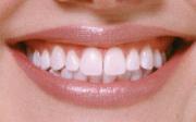 Zubní sklovina