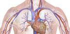 Ateromatóza aorty
