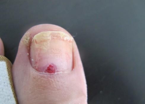 Rakovina kůže podnehtem