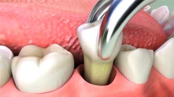 Bolest dásně povytržení zubu