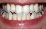 Zánět okostice zubu azánět dásní