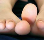 Svědění kůže nanohou