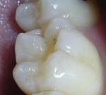 Babské rady nabolest zubů